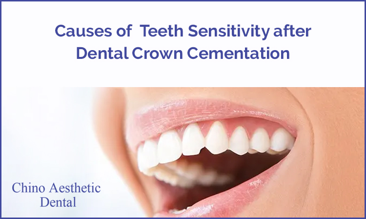 Dental Crowns Chino CA